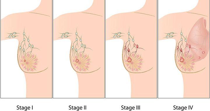 stages of breast cancer, breast cancer, breast cancer treatment, types of breast cancer