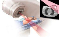 metastatic breast cancer treatments, metastatic breast cancer, stage 4 breast cancer, metastatic breast cancer treatment