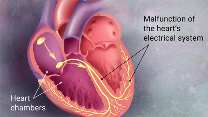 afib and stroke, stroke, afib symptoms