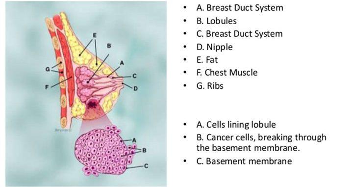 invasive lobular carcinoma, breast cancer, breast cancer treatment