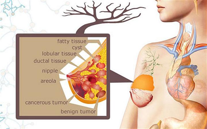 metastatic breast cancer, metastatic breast cancer life expectancy, metastatic breast cancer treatment