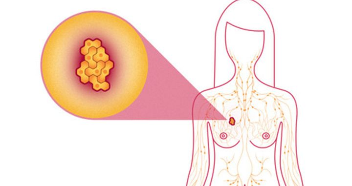 metastatic breast cancer life expectancy, metastatic breast cancer life expectancy, metastatic breast cancer treatment