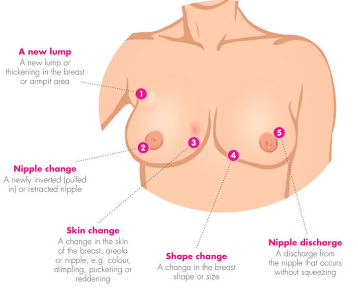 stage IV breast cancer, metastatic breast cancer, stage 4 breast cancer, stage 4 breast cancer symptoms