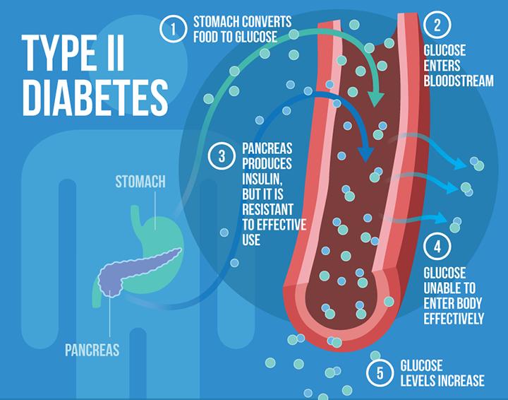 type 2 diabetes, diabetes causes, diabetes symptoms