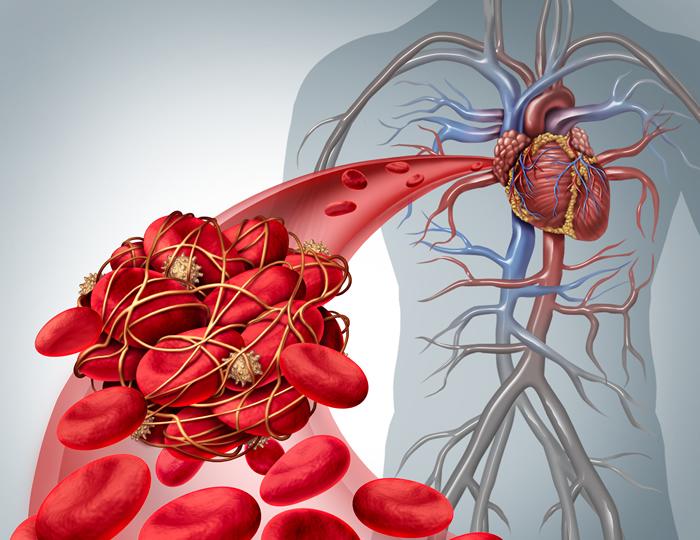 AFib causes, AFib, atrial fibrillation
