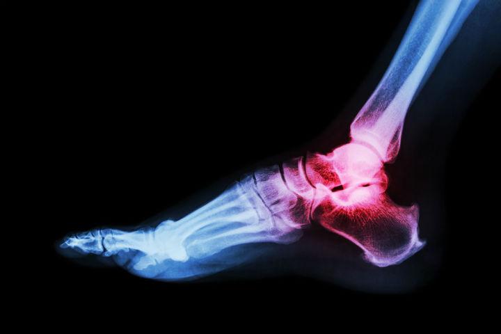 rheumatoid arthritis ankle pain, rheumatoid arthritis foot pain, rheumatoid arthritis, 6 Natural Rheumatoid Arthritis Treatments for Flare-Ups, ankles Rheumatoid Arthritis treatment, ankylosing spondylitis treatment options, Are You Suffering From 'Tech Neck'?, arm rheumatoid arthritis treatments, arms rheumatoid arthritis treatment, Arthritis foot treatments, back rheumatoid arthritis treatment, bunion rheumatoid arthritis treatment, Cartilage in ankle joints, early signs rheumatoid arthritis, feet rheumatoid arthritis treatment, fibromyalgia and rheumatoid arthritis, fingers rheumatoid arthritis treatment, foot rheumatoid arthritis treatment, gouty rheumatoid arthritis treatment, hand rheumatoid arthritis treatment, hands rheumatoid arthritis treatment, knees rheumatoid arthritis treatment, leg rheumatoid arthritis treatment, legs rheumatiod arthritis treatment, legs rheumatoid arthritis treatment, lupus rheumatoid arthritis medicine, medication rheumatoid arthritis treatment, medications for rheumatoid arthritis pain, medications for rheumatoid arthritis treatment, neck pops 300+ timesduring a 15 min. rub, numb and tingling fingers, numbness and tingling fingersgers, ra rheumatoid arthritis, Relieve Your Foot Pain With 6 Easy Tricks, rheumatiod arthritis legs, rheumatiod arthritis legs treatment, Rheumatoid Arthritis, rheumatoid arthritis and fibromyaigia, rheumatoid arthritis and fibromyalgia, rheumatoid arthritis and fibromyalgia treatment, Rheumatoid Arthritis ankles pain treatments, rheumatoid arthritis ankles treatment, rheumatoid arthritis arm pain treatment, rheumatoid arthritis back pain treatment, rheumatoid arthritis back treatment, Rheumatoid Arthritis back treatments, rheumatoid arthritis elbow treatment, rheumatoid arthritis elbow treatments, rheumatoid arthritis feet treatment, rheumatoid arthritis feet treatments, rheumatoid arthritis fibromyaigia, rheumatoid arthritis fibromyaigia treatment, rheumatoid arthritis fibromyalgia pain, rheumatoid arthr