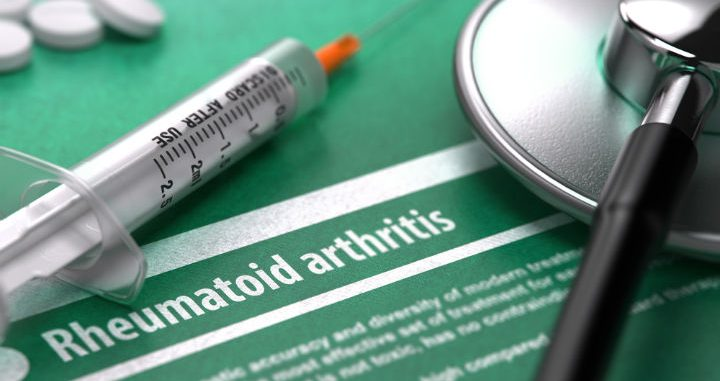 rheumatoid arthritis treatment options, rheumatoid arthritis fibromyalgia treatment, rheumatoid arthritis treatment, rheumatoid arthritis fibromyalgia treatments, treatment for rheumatoid arthritis fibromyalgia, treatment for rheumatoid arthritis leg pain, treatment for Rheumatoid Arthritis hip pain, rheumatoid arthritis hands treatment, rheumatoid arthrits treatment, treatment for rheumatoid arthritis in legs, rheumatoid arthritis treatments, rheumatoid arthritis feet treatments, rheumatoid arthritis lupus treatment, treatment for rheumatoid arthritis, legs rheumatoid arthritis treatment, treatment for rheumatoid arthritis legs, rheumatoid arthritis flare up symptoms, treatment for rheumatoid arthritis in hands, rheumatoid arthritis medications, medication rheumatoid arthritis treatment, Rheumatoid Arthritis treatment hands, treatment for rheumatoid arthritis hips pain, Rheumatoid Arthritis shoulder pain relief, what is rheumatoid arthritis and lupus, leg rheumatoid arthritis treatment, rheumatoid arthritis hand treatments, medications for rheumatoid arthritis treatment, treatment for rheumatoid arthritis feet, rheumatoid arthritis foot treatment, treatment for rheumatoid arthritis leg, rheumatoid arthritis feet treatment, rheumatoid arthritis hands treatments, treatment for rheumatoid arthritis ankle pain, rheumatoid arthritis treatment hands, treatments for rheumatoid arthritis in feet, treatment for rheumatoid arthritis in feet, treatment for rheumatoid arthritis in knee, treatment for rheumatoid arthritis muscle pain, rheumatoid arthritis treatment leg, rheumatoid arthritis foot pain treatment, foot rheumatoid arthritis treatment, rheumatoid arthritis fingers treatment, rheumatoid arthritis and fibromyalgia, what is rheumatoid arthritis or lupus, hands rheumatoid arthritis treatment, treatment for rheumatoid arthritis back pain, rheumatoid arthritis neck treatment, treatment for rheumatoid arthritis joints, treatment for rheumatoid arthritis arms, treatment for