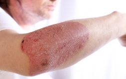 Cosentyx Plaque Psoriasis Treatment
