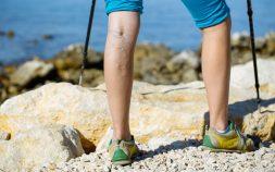 Varicose Eczema Treatment