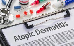 atopic eczema treatments